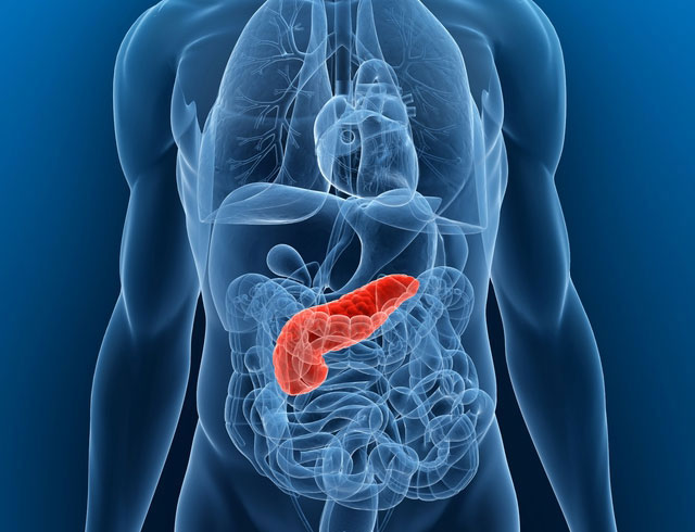 Fattore K. Cancro. Tumore del pancreas, sotto accusa stili di vita non sani