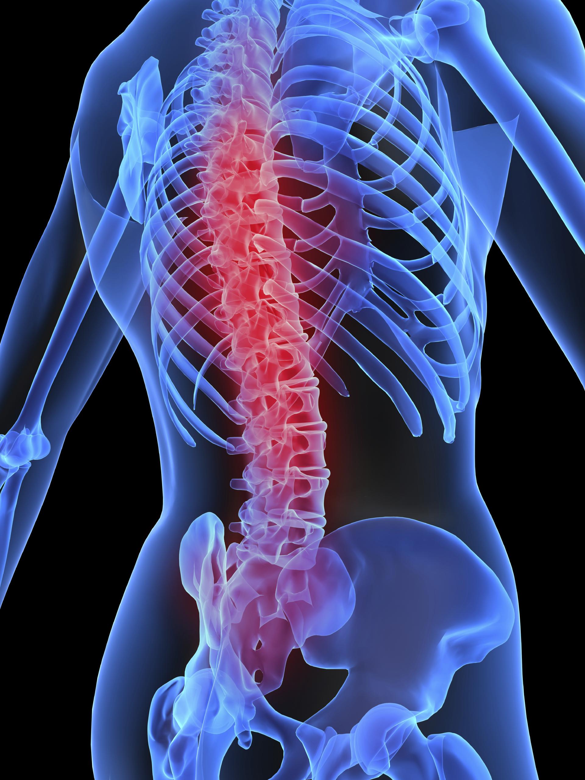 Fattore K. Cancro. Allo Ieo nuova procedura per riparare e curare le vertebre